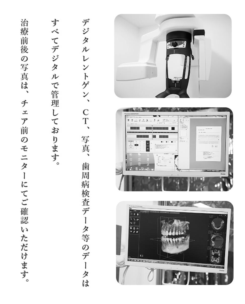 デジタルレントゲン・CT・歯周病検査データ